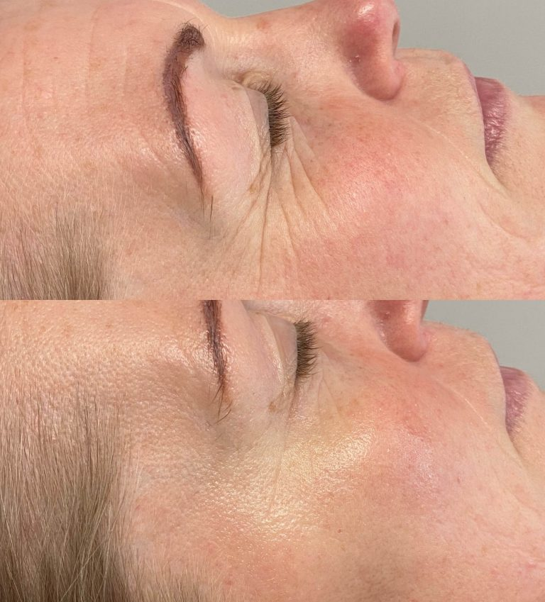 Pure collagen eye sheets before and after photo of face